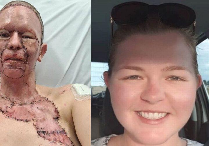 Une femme dont le visage a été horriblement brûlé donne à son mari la permission de la quitter