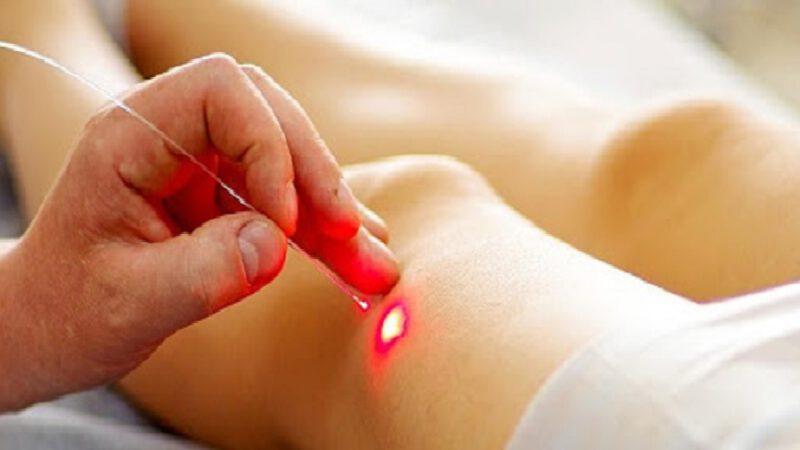 Ce nouveau système laser tue le cancer en quelques secondes sans endommager les tissus sains