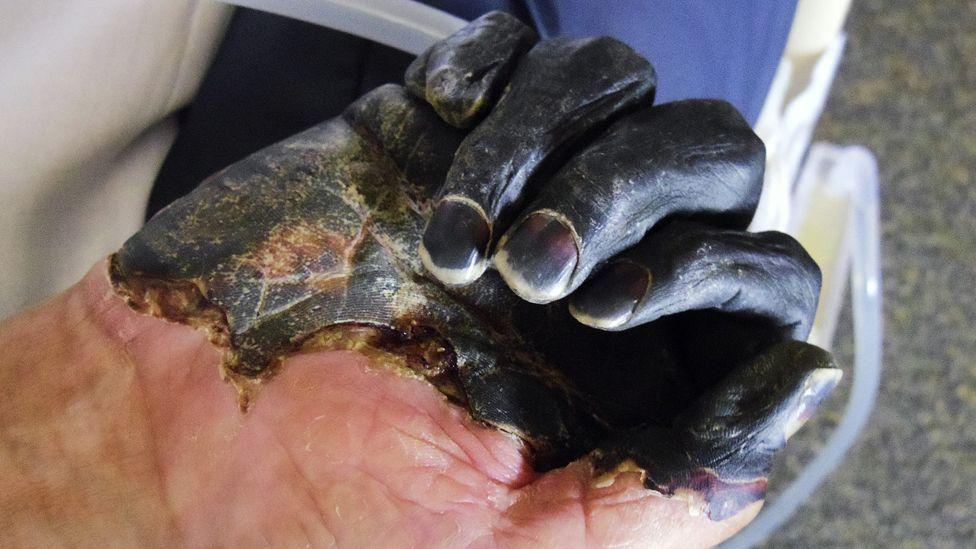 Urgent: Peste bubonique, «mort noire», signalée en Chine