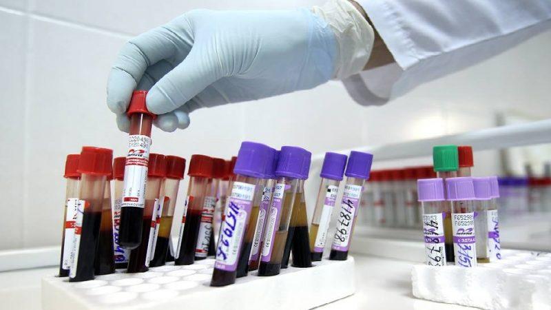 Le taux d'infection par le VIH en Russie est dix fois plus élevé qu'en Europe
